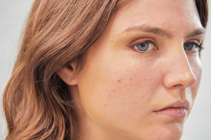 Uneven & Blotchy Skin: Causes & Treatments | The Bar