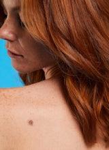 Cómo detectar signos tempranos de cáncer de piel
