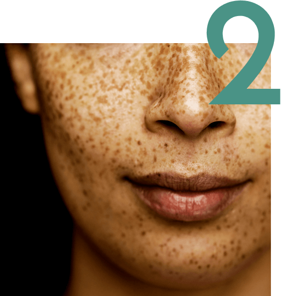 A woman's face with spots