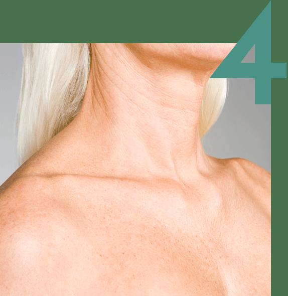 Cuello de una mujer